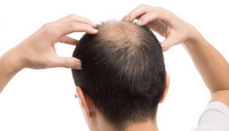 3 rimedi giusti per avere capelli forti 61f75ecd7619